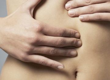Методы лечения грыжи белой линии живота без операции