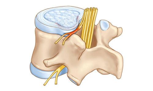 Грыжа позвоночника - это патологическое состояние, при котором наблюдается разрушение фиброзного кольца межпозвоночного диска