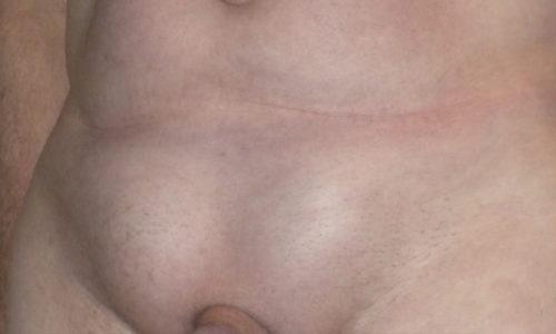 Паховая грыжа - это патология, которая проявляется выпячиванием внутренних органов через паховый канал вследствие слабости соединительной ткани