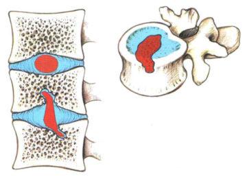 Методы лечения грыжи Шморля