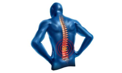 Боли появляются в месте, где расположены сдавленные нервные окончания