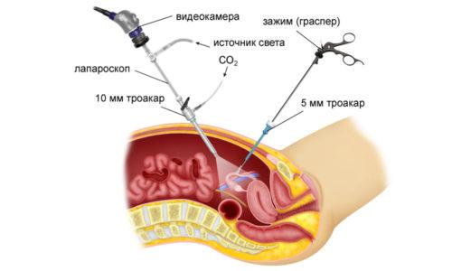 Лапроскоп вводят в брюшную полость через небольшой прокол и с его помощью производят необходимые манипуляции