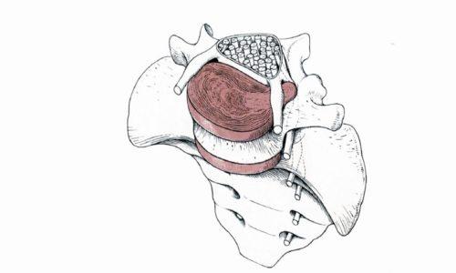 Латеральная грыжа - образование занимает небольшой участок у входа нервного корешка в канале спинного мозга