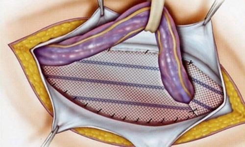 Натяжная герниопластика - осуществляется путем натяжения тканевых структур пациента, которые сводятся в области грыжевых ворот, после чего зашиваются