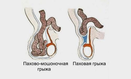 В зависимости от локализации различают пахово-мошоночную грыжу, когда патологический процесс затрагивает мошонку и располагается на уровне яичек