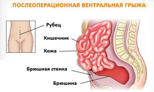 Вентральная грыжа возникает после хирургического вмешательства