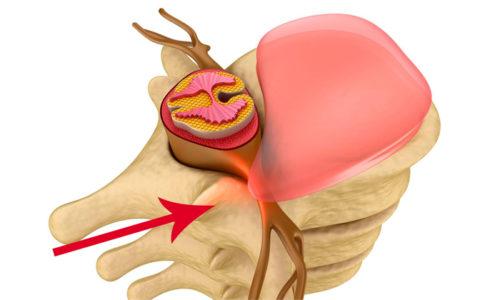 Заднебоковые грыжи сдавливают нервные корешки