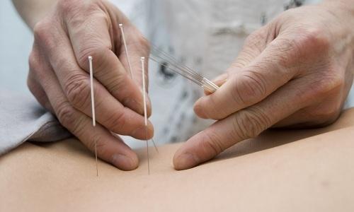 Иглоукалывание облегчает состояние пациента, а также устраняет болевой синдром