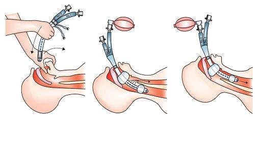 К методам неотложной помощи относится интубация трахеи. Они позволяют снизить процент летального исхода