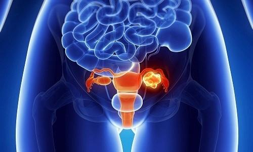 Хирургическое удаление грыжи проводят при нарушении функций органов таза