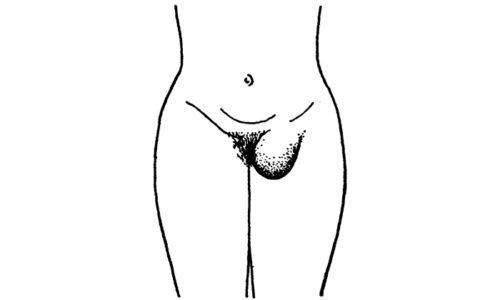 Паховая грыжа у девочек встречается редко, чаще всего заболевание имеет врожденное происхождение