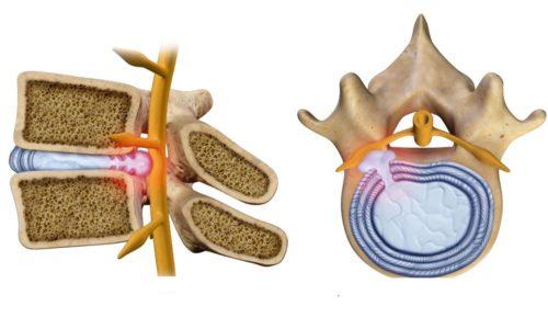 Разновидностью парамедиальной грыжи является секвестрированная
